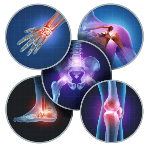 Joint Pain Multiple Joints